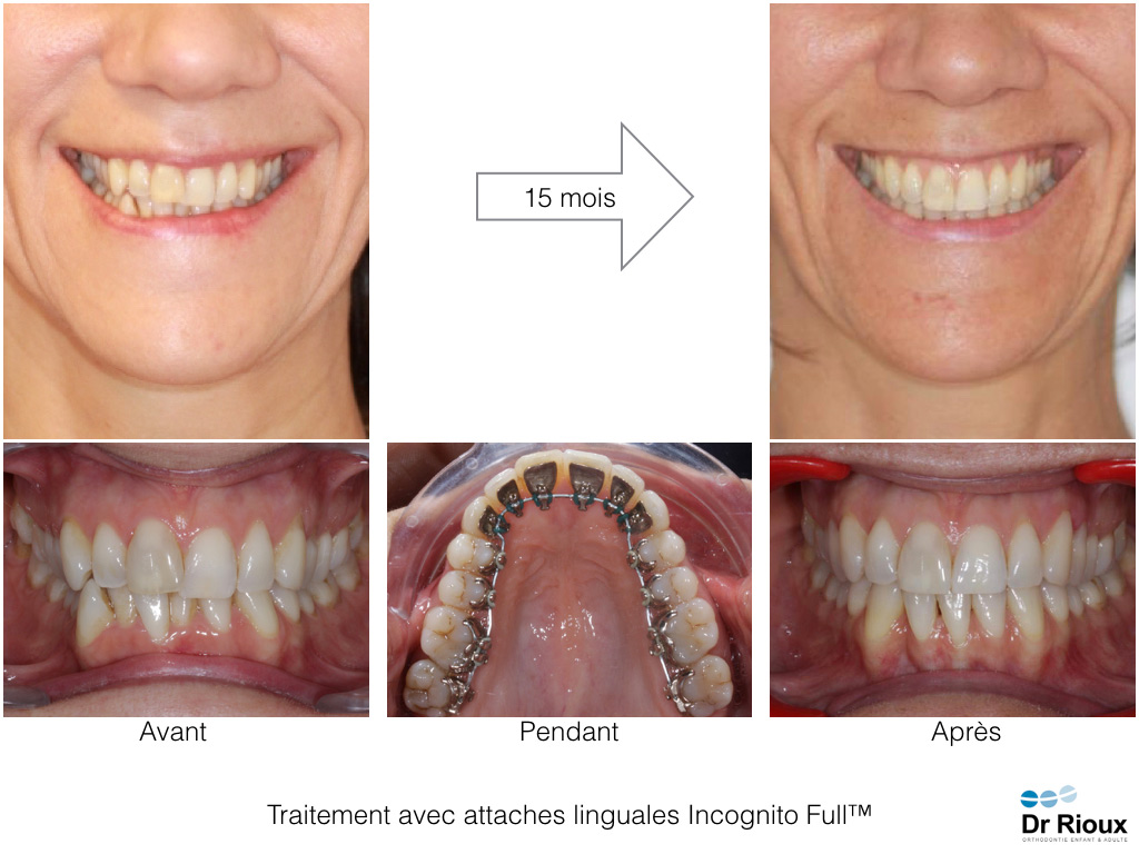 orthodontie linguale